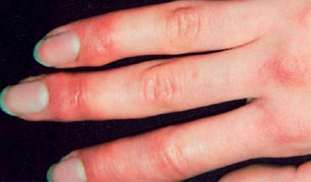 sabañones en los dedos de las manos